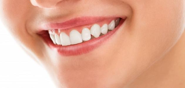 صورة أنواع وتقنيات تجميل الأسنان